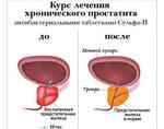 lechenie-prostatita-zhenoy-doma